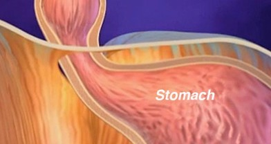 Heartburn / GERD Surgery in Tampa, FL : Suncoast Surgical Associates
