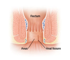 Pain after anal fissure surgery
