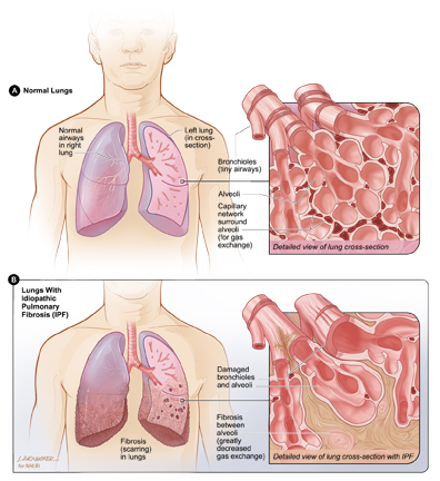 Idiopathic Pulmonary Fibrosis Illustration