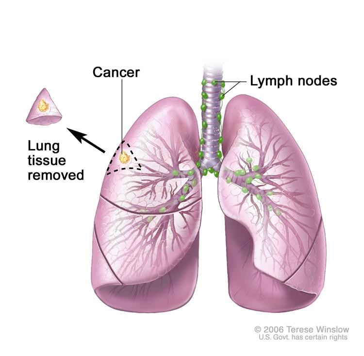 lung_cancer_001