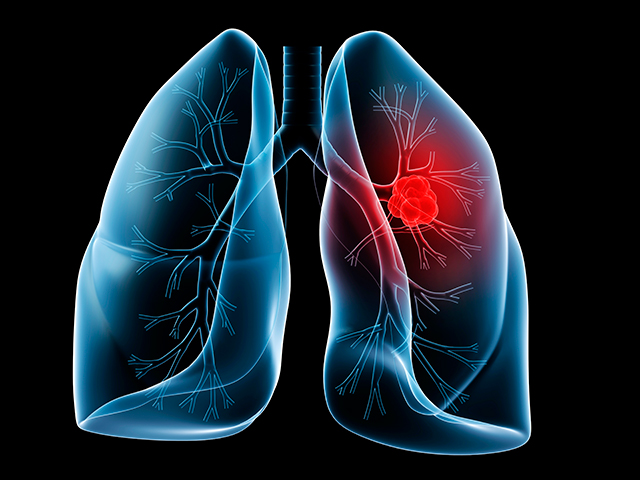 lung_cancer_003